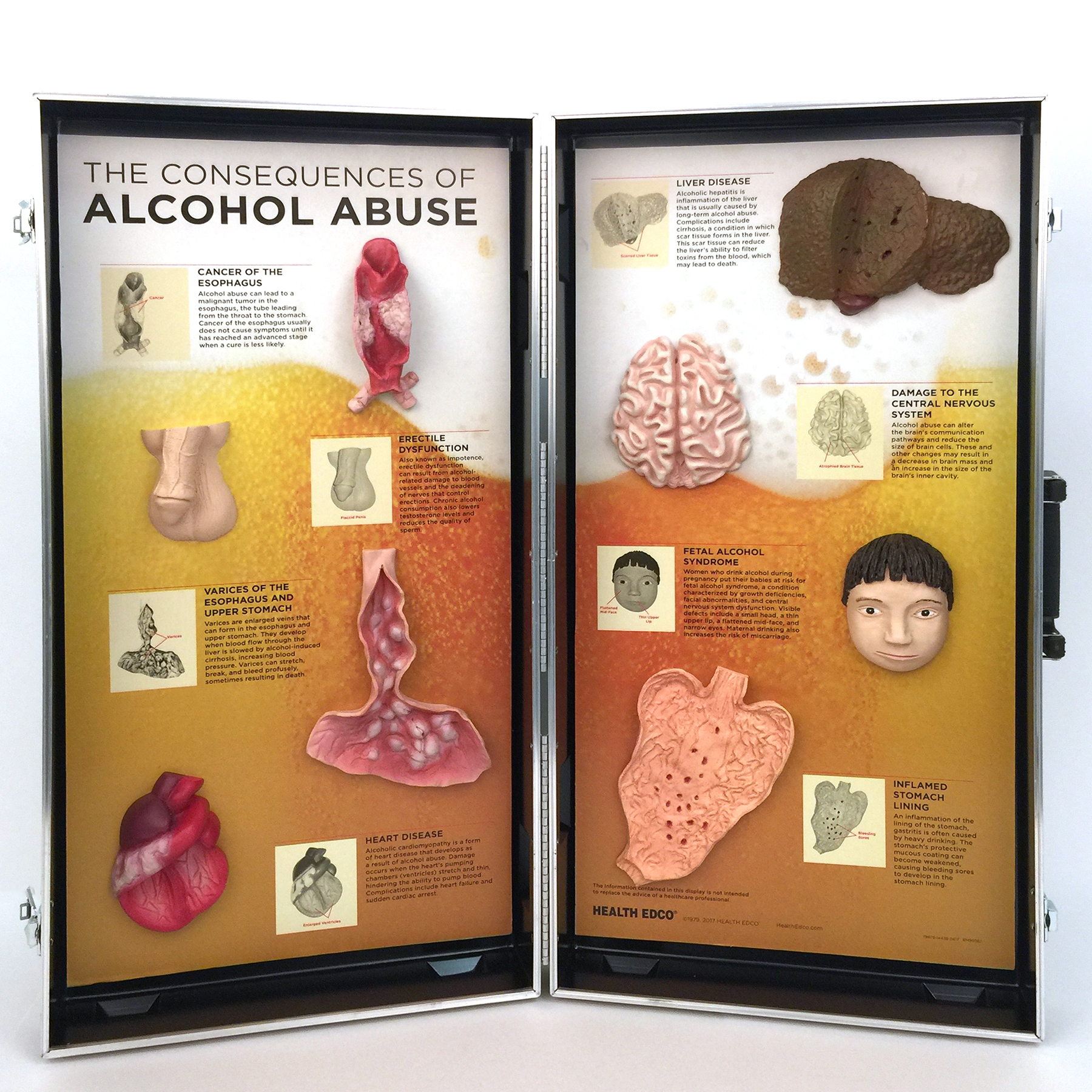 Alcohol Abuse Consequences Display with 3-D organ models