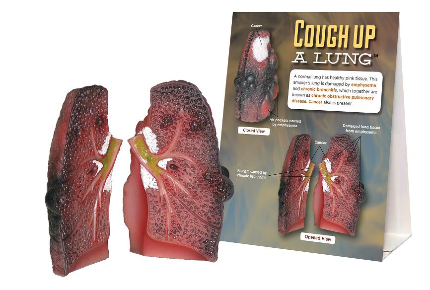 Cough Up a Lung Model for tobacco education from Health Edco