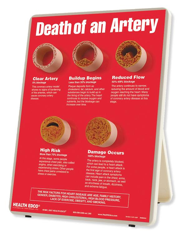 Death of an Artery Easel Display from Health Edco