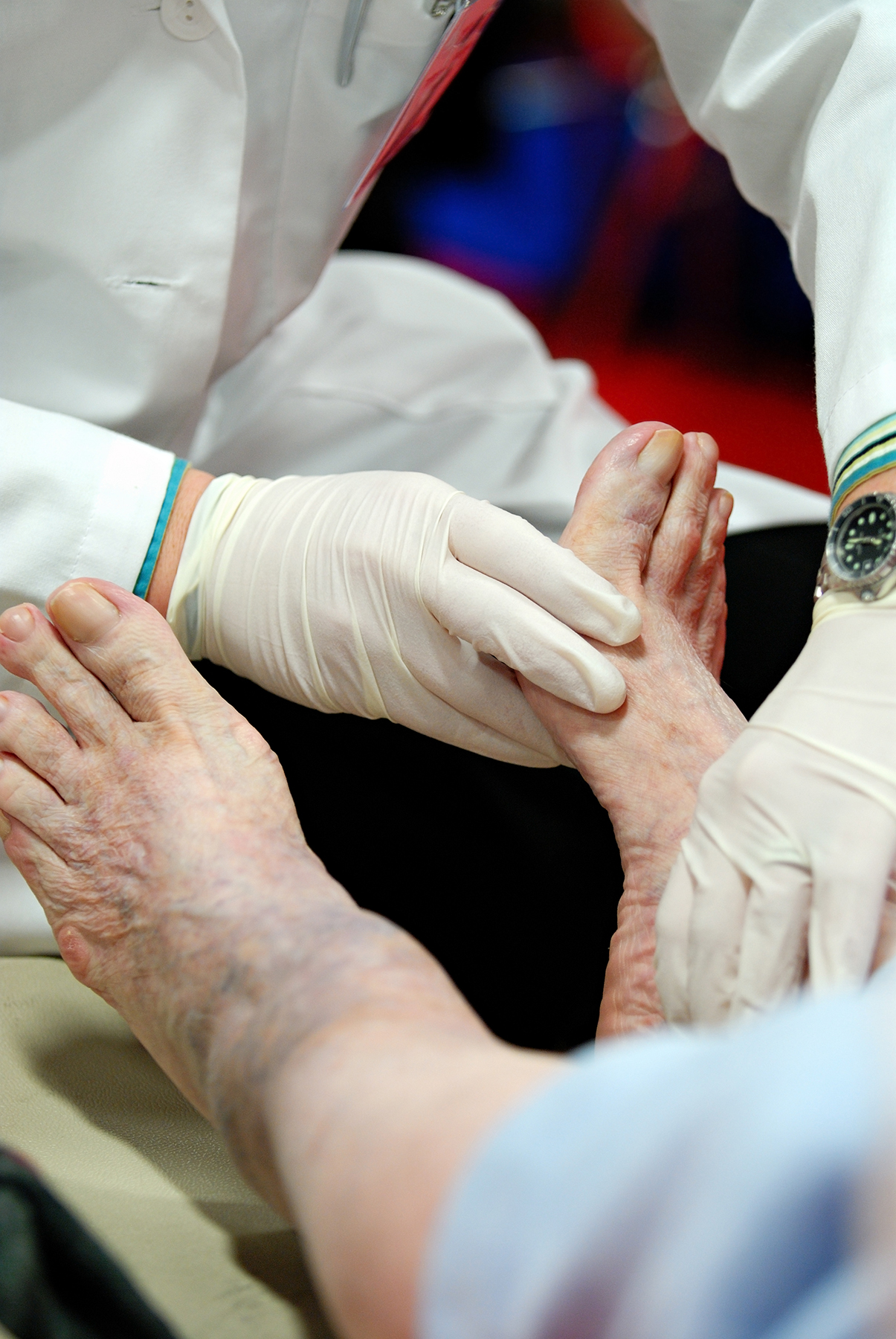 Doctor examining an elderly person's diabetic foot