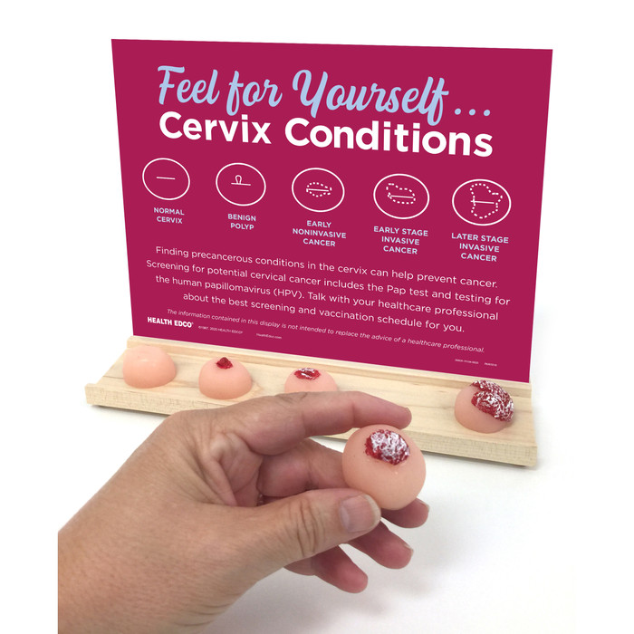 Feel for Yourself: Cervix Conditions Display for health education by Health Edco to promote cervical cancer screening, 26805