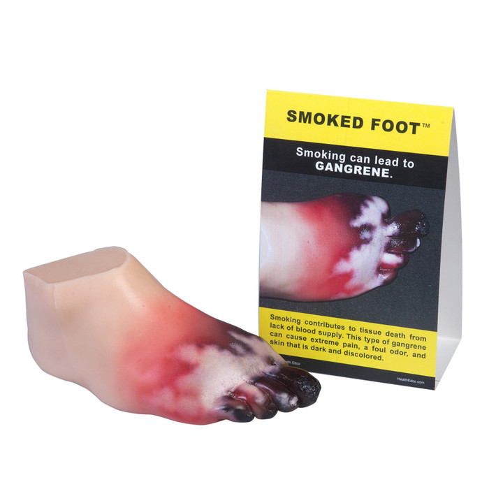 Gangrene Foot Model, smoking affecting feet, foot tissue damage, soft realistic foot model depicting gangrene and other tissue damage with tent card, Health Edco, 27029