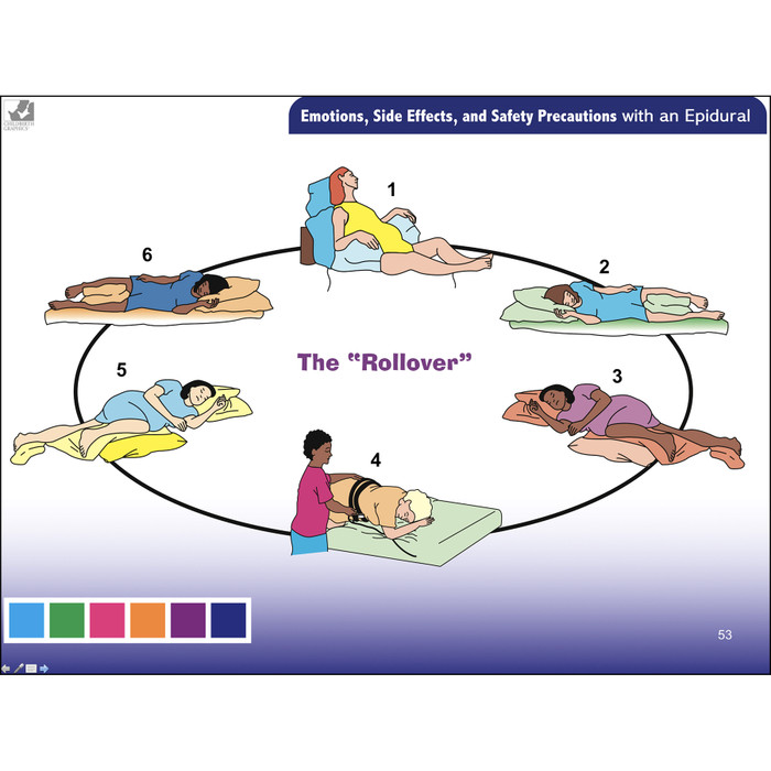 Pain Medications for Labor & Birth PowerPoint, comprehensive 66 frame pain medication for labor & birth presentation by Penny Simkin, safety precautions with an epidural, Childbirth Graphics, 30861