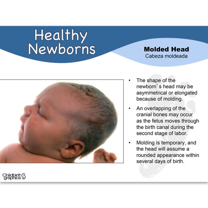 Healthy Newborns PowerPoint frame showing photo of molded head and explanation, Childbirth Graphics 48514