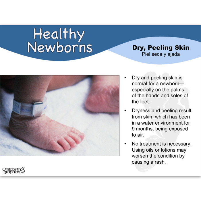 Healthy Newborns PowerPoint frame showing photo of newborn feet with dry peeling skin with explanation, Childbirth Graphics 48514