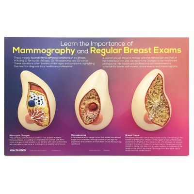 Learn the Importance of Mammography Display, women's breast health education display with breast models, Health Edco, 51200