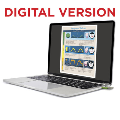 Stages of Labor Tear Pad Virtual Educational Resource, Childbirth Graphics teaching tool shown on laptop screen, 52736V
