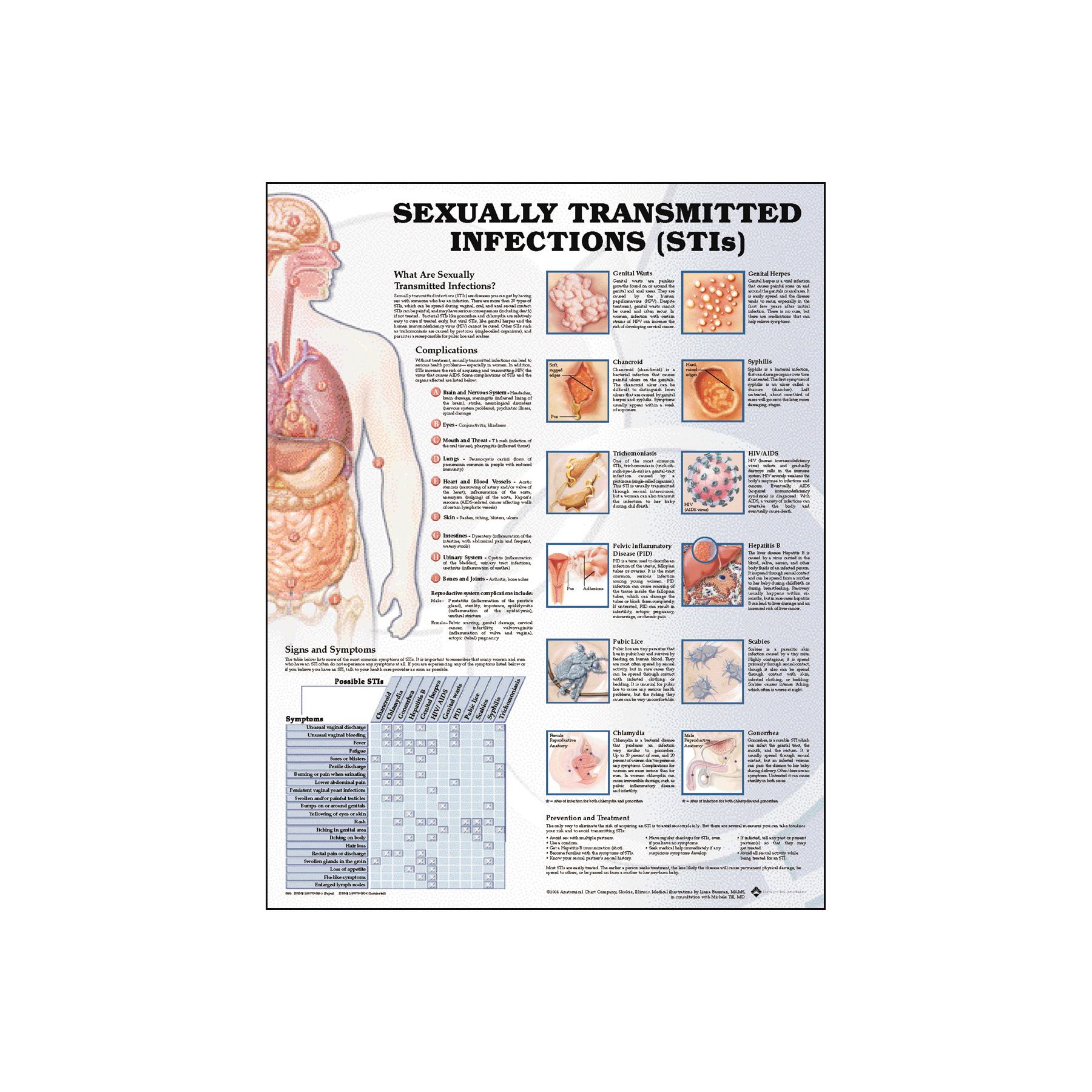 Common sexually transmitted infections chart