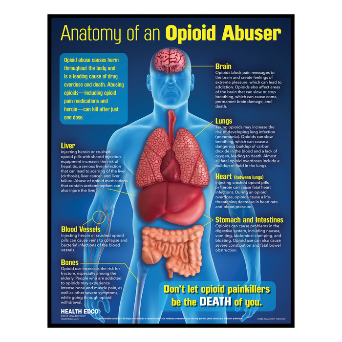 Anatomy of an Opioid Abuser 3-D health education display, opioid drug education materials and models, Health Edco, 78883