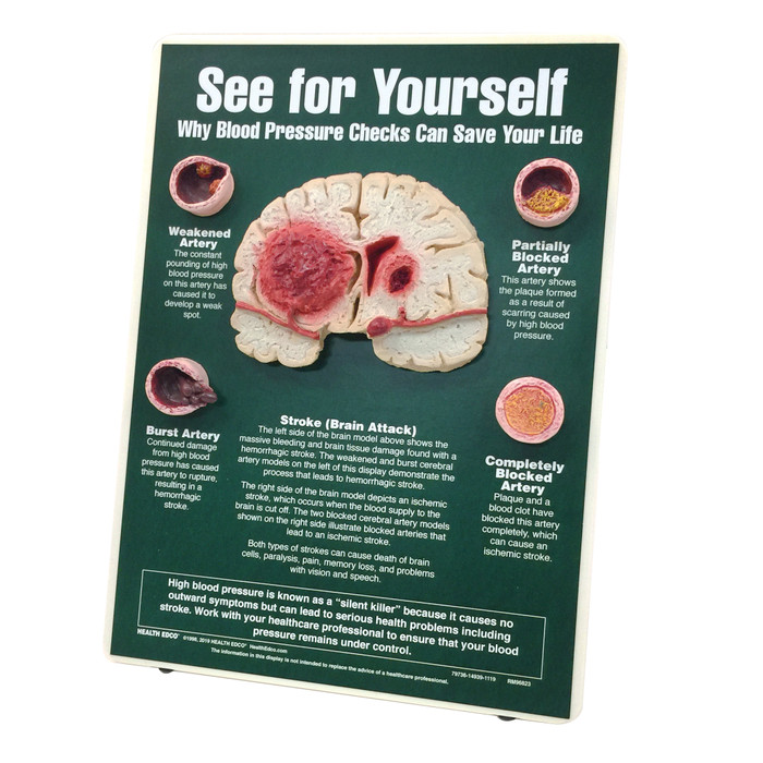 See for Yourself Blood Pressure Checks Easel Display for health education by Health Edco with brain and artery models, 79736