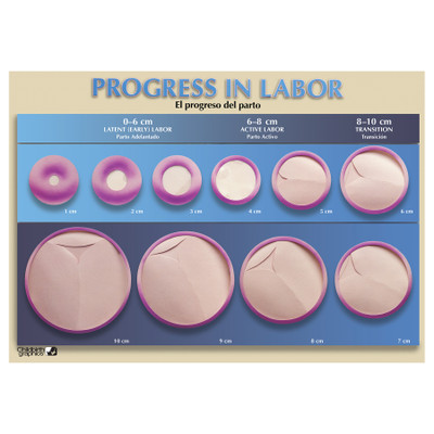 Progress in Labor Chart