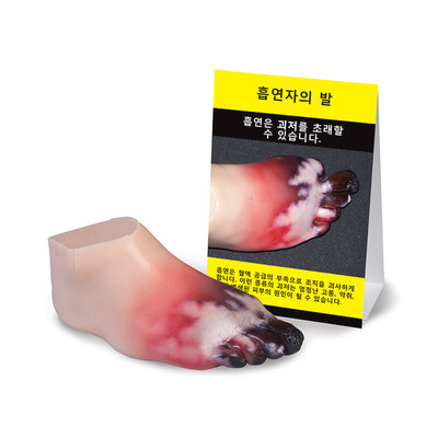 Health Edco; health education resources; anti-tobacco; smoking consequence; smoking cessation; amputated foot; Korean translation; peripheral artery disease;