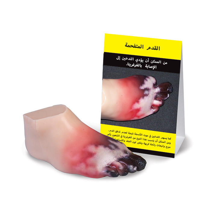 Health Edco; health education resources; anti-tobacco; smoking consequence; smoking cessation; amputated foot; Arabic translation; peripheral artery disease;