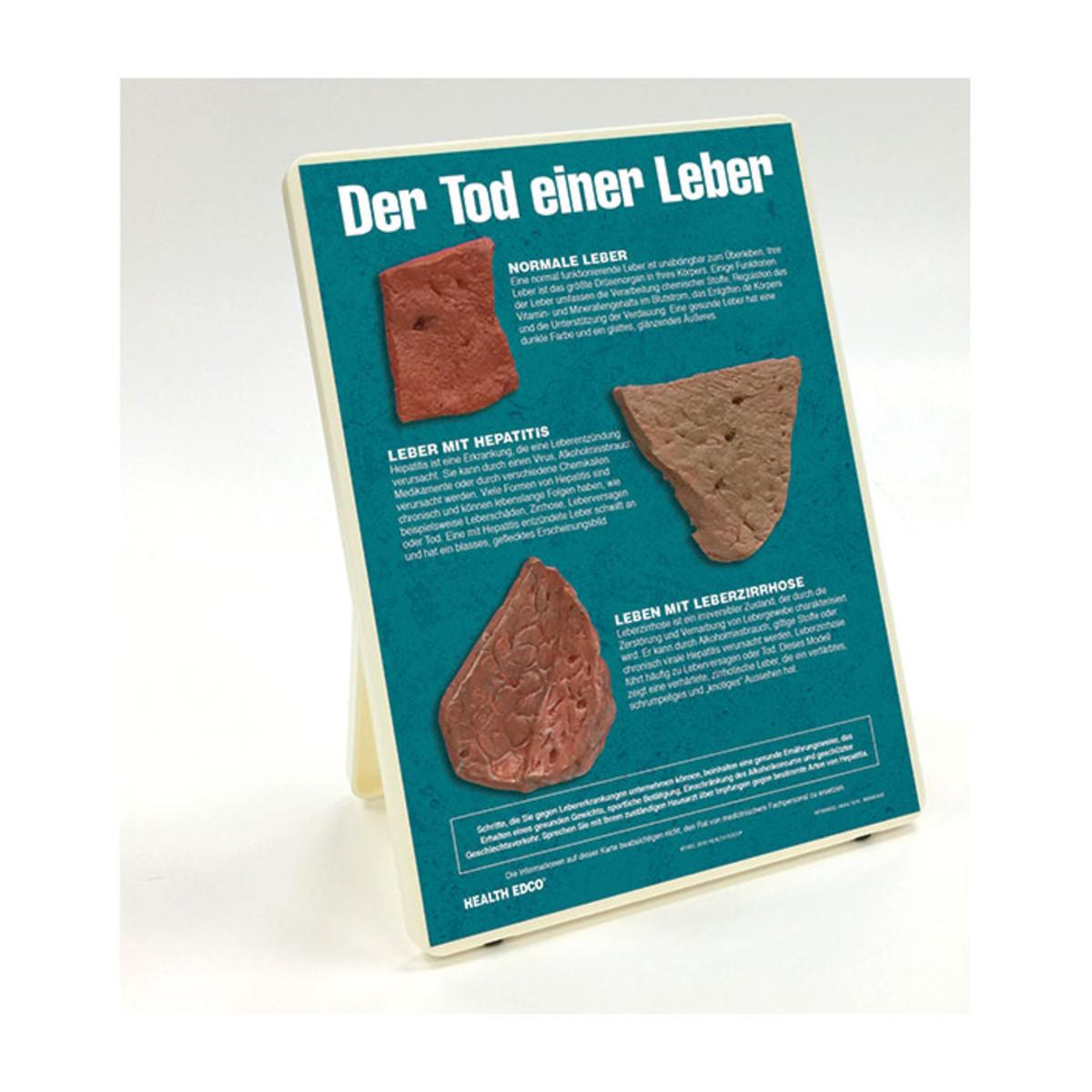Health Edco; German; health education products; liver disease; hepatitis; cirrhotic liver; alcohol abuse