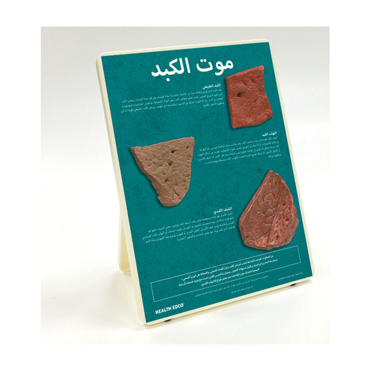 Health Edco; Arabic; health education products; liver disease; hepatitis; cirrhotic liver; alcohol abuse