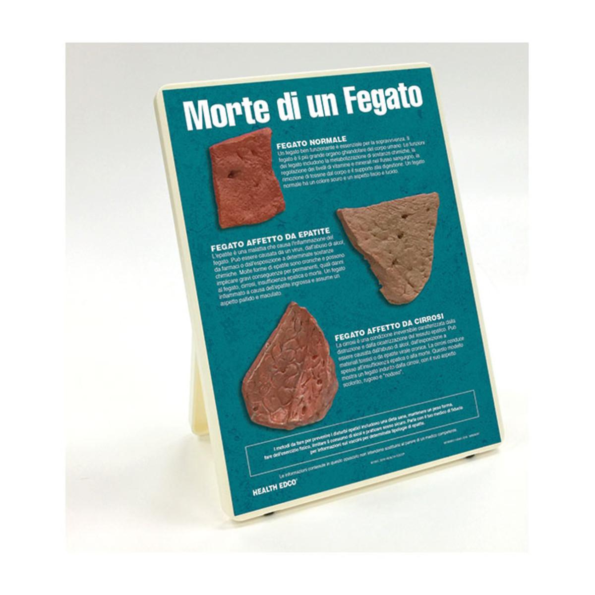 Health Edco; Italian; health education products; liver disease; hepatitis; cirrhotic liver; alcohol abuse