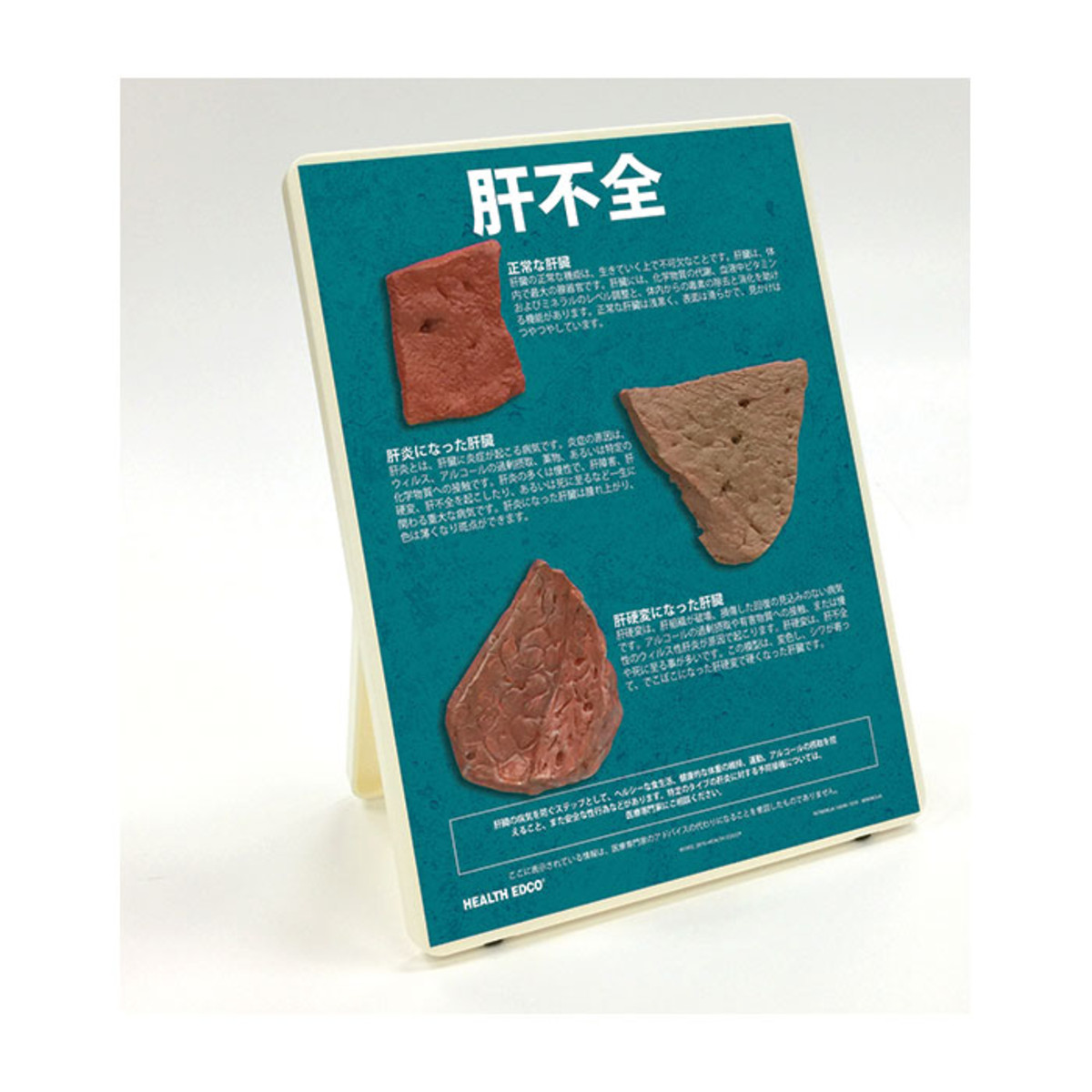 Health Edco; Japanese; health education products; liver disease; hepatitis; cirrhotic liver; alcohol abuse
