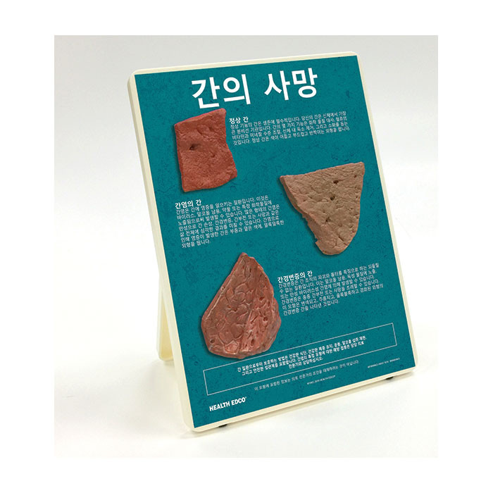 Health Edco; Korean; health education products; liver disease; hepatitis; cirrhotic liver; alcohol abuse