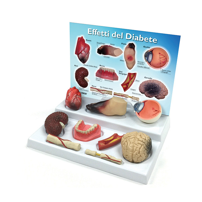 Health Edco; Italian; health education products; diabetes;