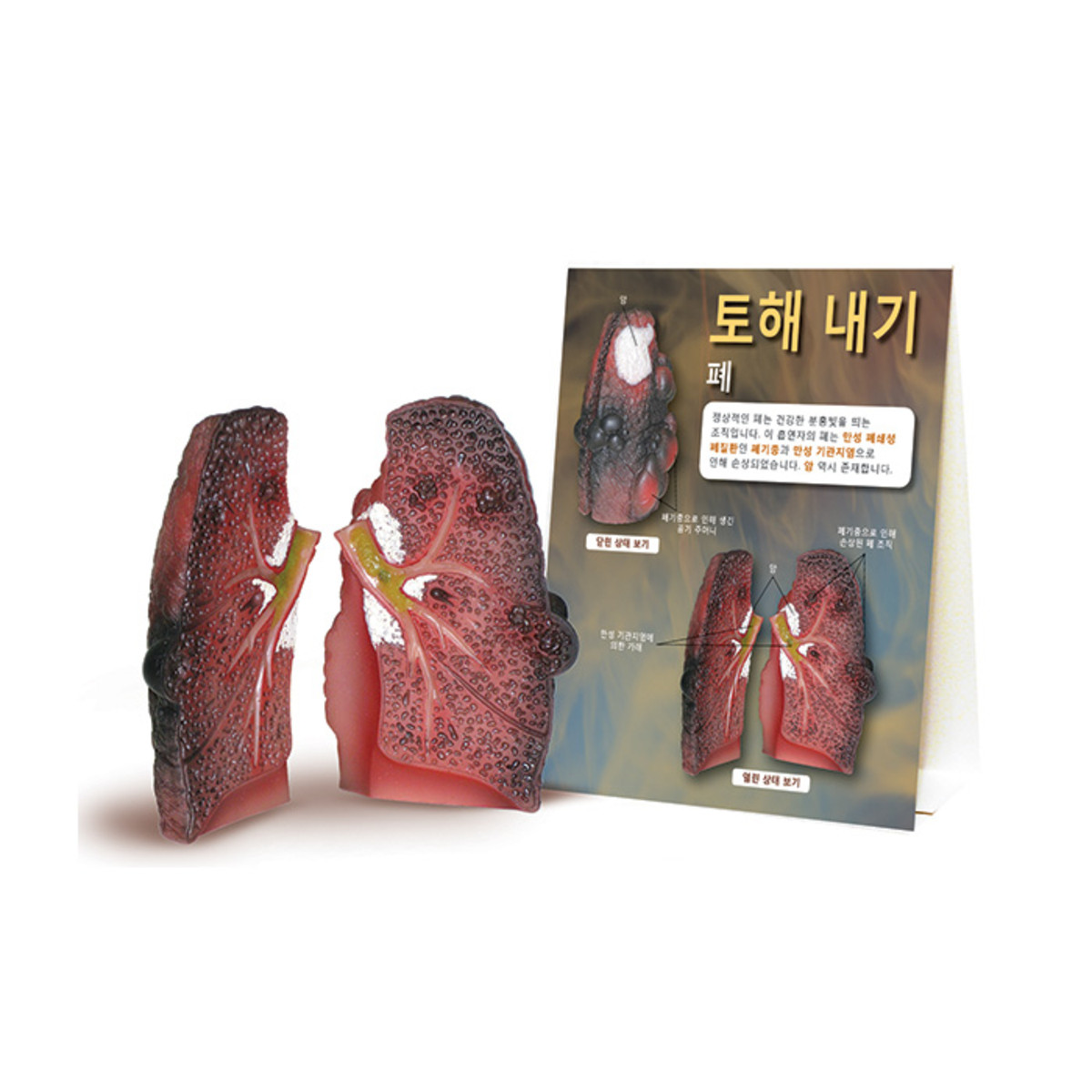 Health Edco; Korean; health education products; tobacco; cancer; smoking cessation; pulmonary disease; chronic; lung damage