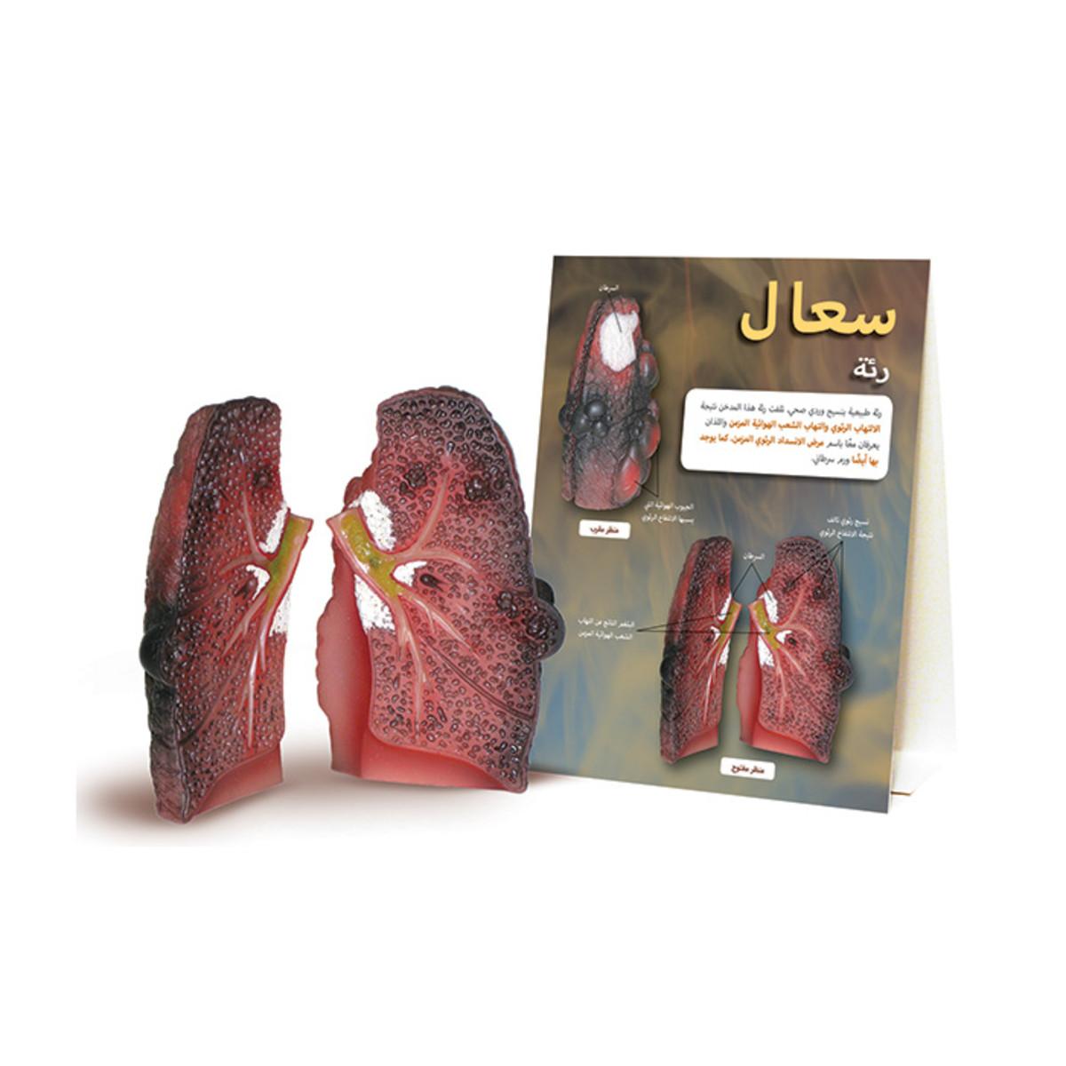 Health Edco; Arabic; health education products; tobacco; cancer; smoking cessation; pulmonary disease; chronic; lung damage