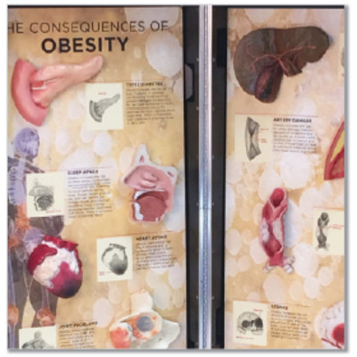Overweight & Obesity